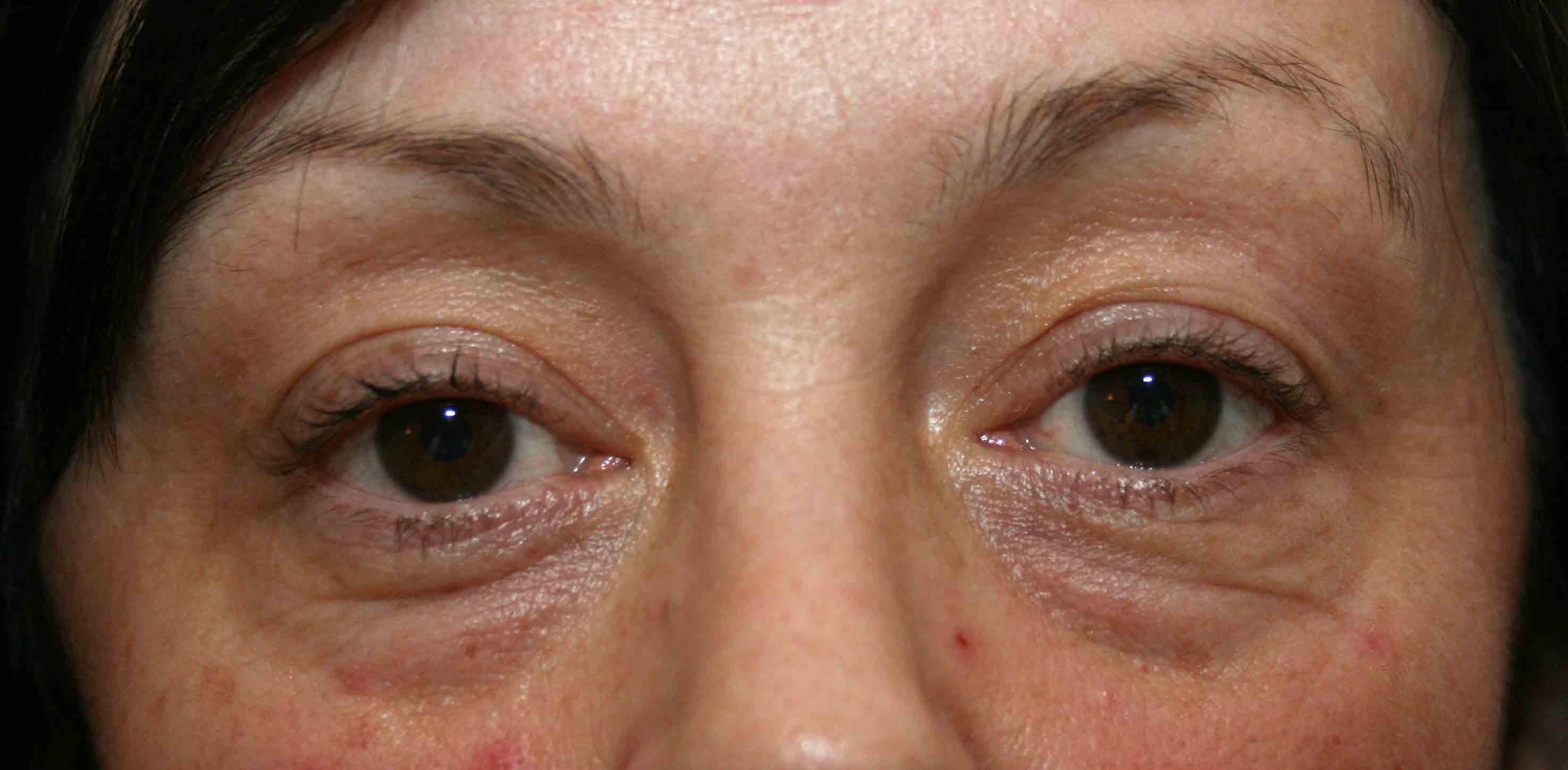 Появление жировой грыжи под глазами - это не признак усталости, либо старения. Часто такой дефект внешности можно встретить у молодых людей. Потому очень важно разобраться с причинами появления.