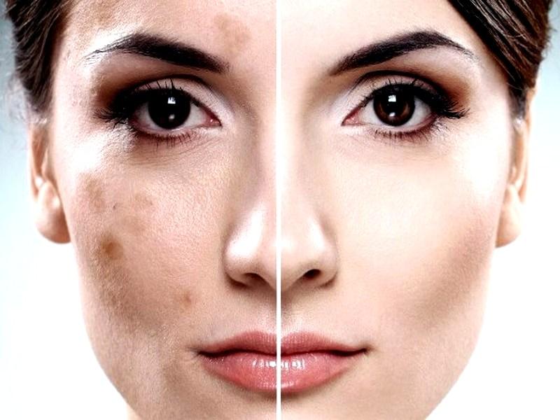 При попадания лучей солнца на кожу появляются пигментнык пятна