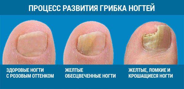 stadii-razvitiya-gribka-nogtej-600x291