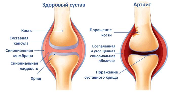 Почему ноют суставы ног и рук опухоль на суставе пальца руки